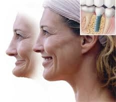 8 Really Awesome Facts about Dental Implants in Chicago, PART 3