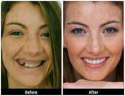 Tooth Implants Tips for Preparing Yourself for the Treatment