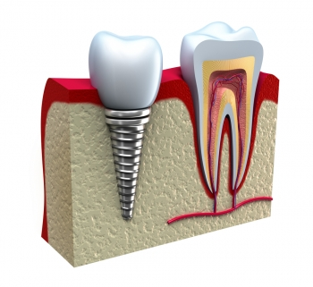 5 Things You Need to Know about Caring for Your Teeth Implants