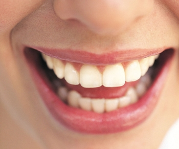 Bleaching or Teeth Whitening Are the Norm in Fort Worth