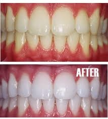Chicago Cosmetic Dentistry Insight: About Teeth Whitening