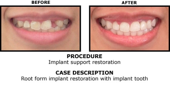 Dental Implants Popular Myths about Implants Busted