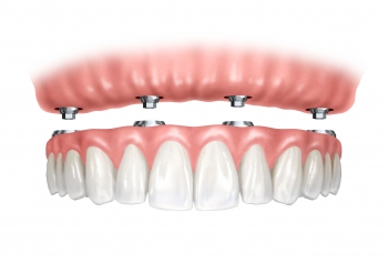 Get Back Your Smile With Cosmetic Dentures