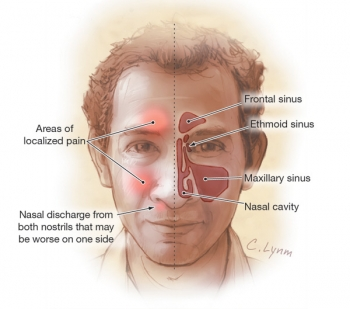Herbal Remedies For Sinus Infection