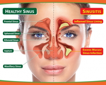 Home Treatment For Sinus Infection