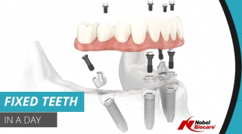 Importance of Dentures in Our Life