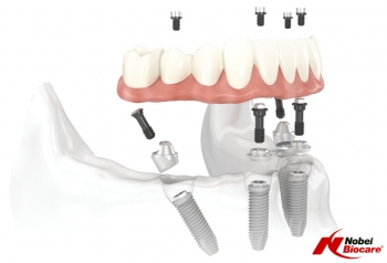 The Fascinating Technology of Dental Implantations