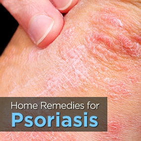 Treatments For Psoriasis is Best Attained Naturally
