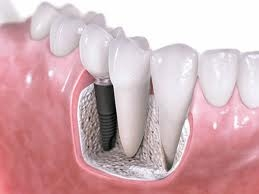 Understanding Dental Implants and Choosing a Chicago Implant Dentist