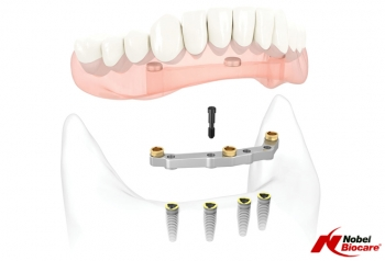 What Are The Main Advantages Of Dental Implants?