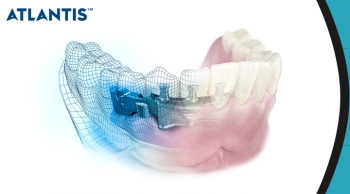 What Materials Are Used To Make New Dentures?